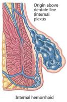 Internal Hemorrhoid Diagram